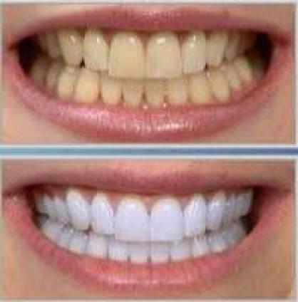 Compra Coletiva De Clareamento Dental Como Fazer Facil