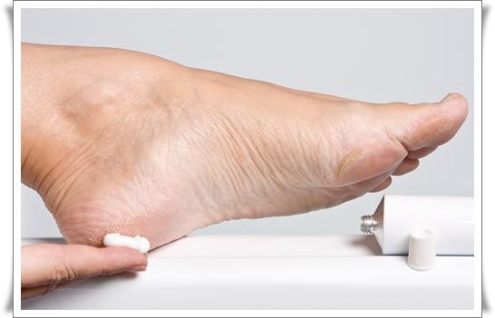Rachaduras-nos-pés-dicas-caseiras-para-tratar-1