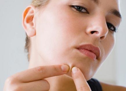 Sabonete-para-tratar-e-prevenir-acne-dicas