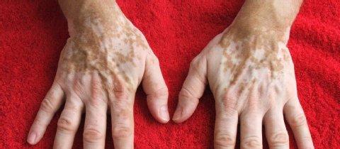 Tratamento-gratuito-vitiligo-em-SP-3