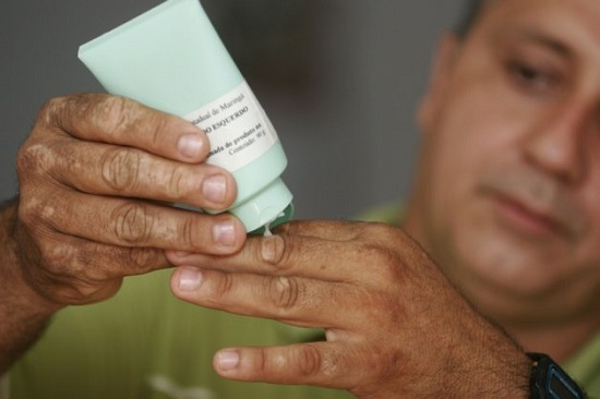 Tratamento-gratuito-vitiligo-no-RJ-2
