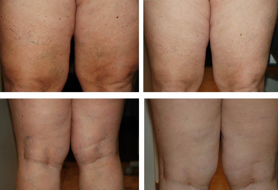 Cirurgia plástica nas pernas, como funciona