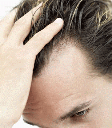 Clinicas para implantes de cabelos1