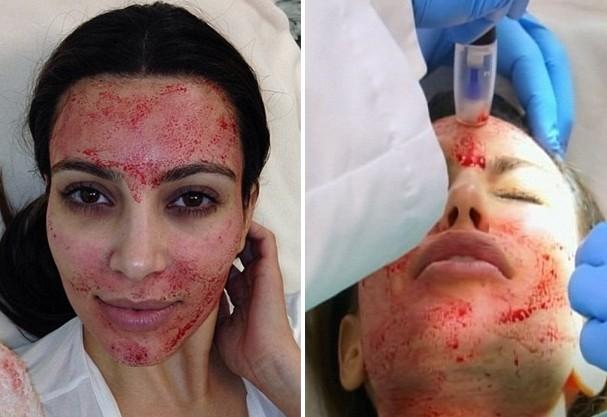 Tratamentos excêntricos para Beleza feminina