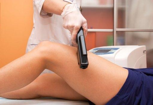 Mitos e verdades sobre depilação a laser. (Foto: Divulgação)