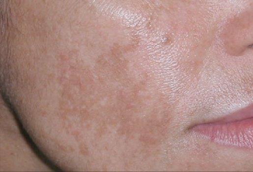O melasma é uma mancha amarronzada que aparece no rosto. (Foto: Divulgação)