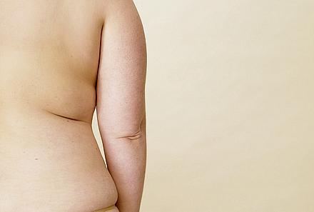 Sintomas de gordura no fígado