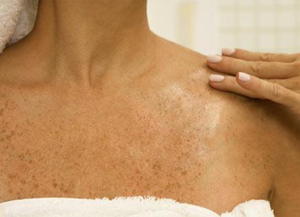 Tipos de manchas de pele
