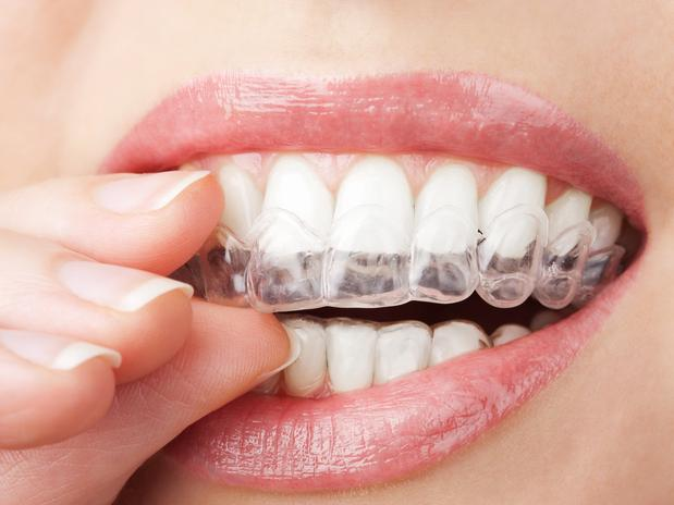 Cuide dos dentes (Foto: Divulgação)