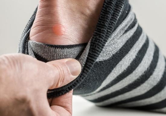 Produtos para evitar bolhas nos pés - Veja produtos para evitar bolhas nos pés (Foto: Divulgação)